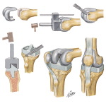 Total Knee Arthroplasty