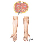 Incisions for Compartment Syndrome of Forearm and Hand