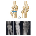 High Tibial Osteotomy for Varus Deformity of Knee