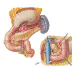 Blood Supply of Stomach and Duodenum