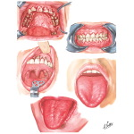 Oral Manifestations in Blood Dyscrasias