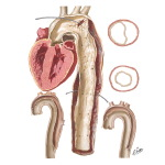 Aneurysms of the Aorta
