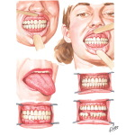 Oral Manifestations Related to Endocrine System