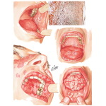 Oral Manifestations in Various Skin Conditions