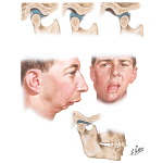Abnormalities of Temporomandibular Joint