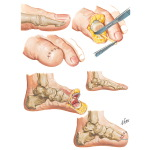 Illustration of Toe Amputation - Transmetatarsal Amputation from the Netter Collection