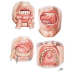 Cysts of Jaw and Oral Cavity