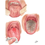 Manifestations of Tongue