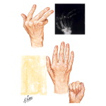 Metacarpophalangeal Joint Disabilities