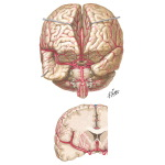 Arteries of Brain: Frontal View and Section