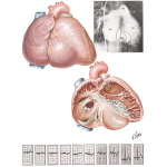 Anomalies of the Tricuspid Valve