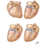 Variations of the Coronary Arteries