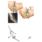 Radial Head Implant Arthroplasty - Total Elbow Replacement