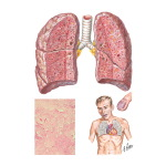 Idiopathic Diffuse Interstitial Pulmonary Fibrosis (Hamman-Rich Disease)