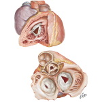 Rheumatic Heart Disease XII - Tricuspid Stenosis and Insufficiency