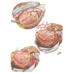 Myocardial Revascularization by the Vineberg-Sewell Implant