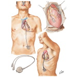 Pacemaker Implantation In Treatment of Complete Heart Block