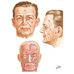 Illustration of Lines of Incision for Removal of Skin Tumors of the Face from the Netter Collection