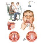 Examination of the Larynx