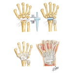 Implant Resection Arthroplasty for Radiocarpal Joint