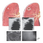 Pulmonary Tuberculosis - Progressive Pathology