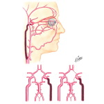 Potential Collateral Circulation Following Occlusion of Internal Cartoid Artery