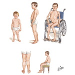 Illustration of Duchenne's Muscular Dystrophy from the Netter Collection