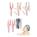 Endarterectomy for Extracranial of Carotid Artery Atherosclerosis