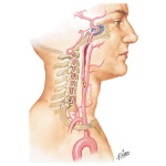 Stenosis or Occlusion of Carotid Artery