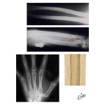 Radiographic Findings in Appendicular Osteoporosis