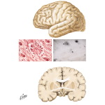 Alzheimer's Disease: Pathology