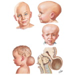 Craniosynostoses and Encephalocele