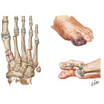 Fractures of Metatarsals, Crush Injury, and Dislocation of Great toe