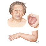 Adult Myxedema - Clinical Manifestations and Etiology