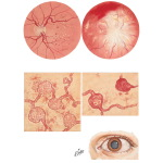 Diabetic Retinopathy and Cataract