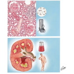 Diabetic Nephropathy and Necrotizing Papillitis