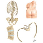 Pathologic Anatomy of Scoliosis