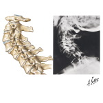 Spine Involvement in Osteoarthritis