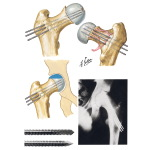 Pin Fixation in Slipped Capital Femoral Epiphysis