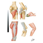 "Popliteus Tendinitis - lliotibial ""Band"" Friction Syndrome"