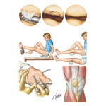 Disorders of Patella
