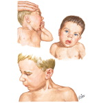 Illustration of Congenital Muscular Torticollis (Wryneck) from the Netter Collection
