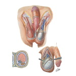 Illustration of Covering Structures of the Testicles Scrotum and Contents Testis, Epididymis and Ductus Deferens from the Netter Collection