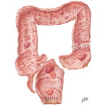Familial Polyposis of Large Intestine