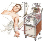 Hemodialysis in Progress