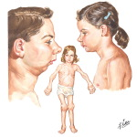Polyarticular Juvenile Rheumatoid Arthritis Typical Fever, Position of Head, and Sequelae