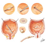 Foreign Bodies in the Urinary Bladder