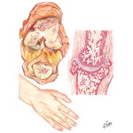 Pathology of Osteoarthritis and Joints Usually Involved