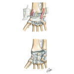 Ligaments of Volar Aspect of Wrist with Transverse Carpal Ligament Removed