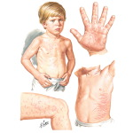Characteristic Rash of Juvenile Rheumatoid Arthritis (JRA) Compared to Rheumatic Fever Rash